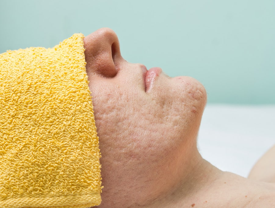 acne scar patient with towel over eyes