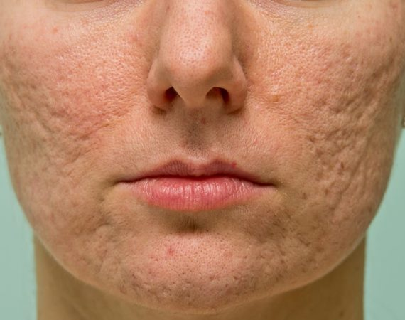 Ice pick acne scar on a woman's cheeks and chin.